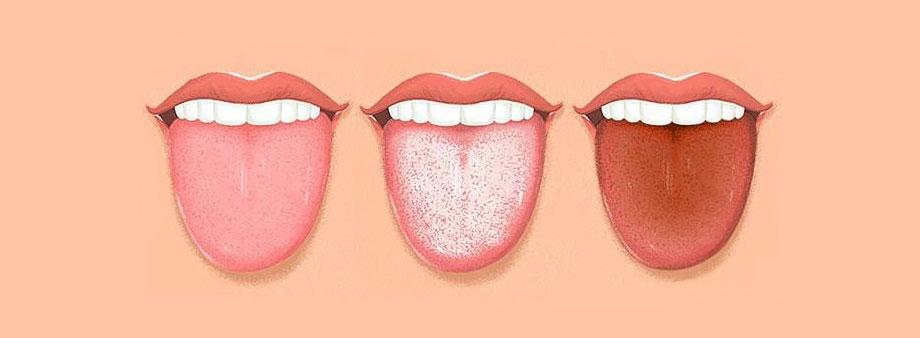 milyen lepedék a nyelvön parazitákkal)